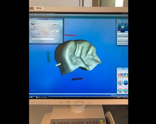 Kundenbild klein 8 Brandt Michael Dr., Die Praxis für Zahnerhaltung